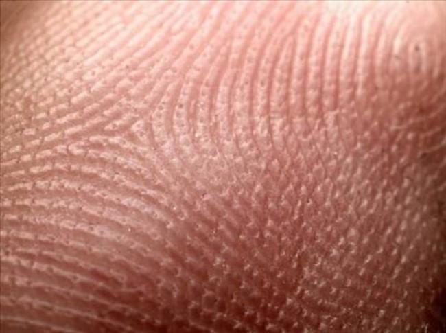 На Урал откриха фабрика за култивиране на човешка кожа