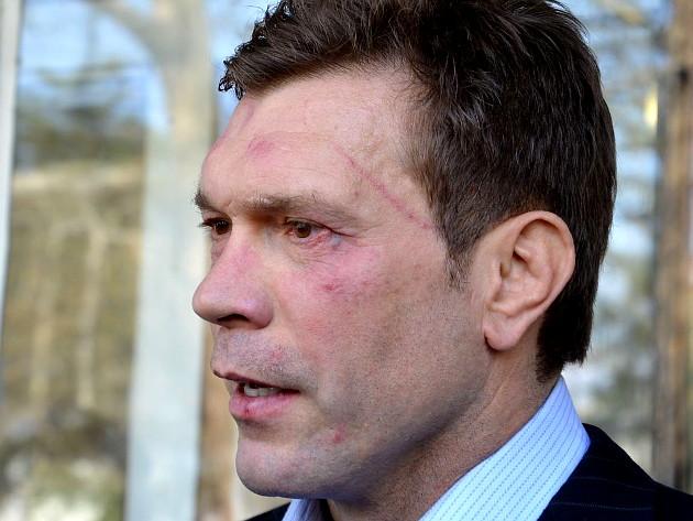 Жестоко пребиха кандидат за президент на Украйна