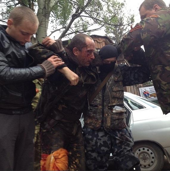 Медиците в Славянск оперираха пленения пилот