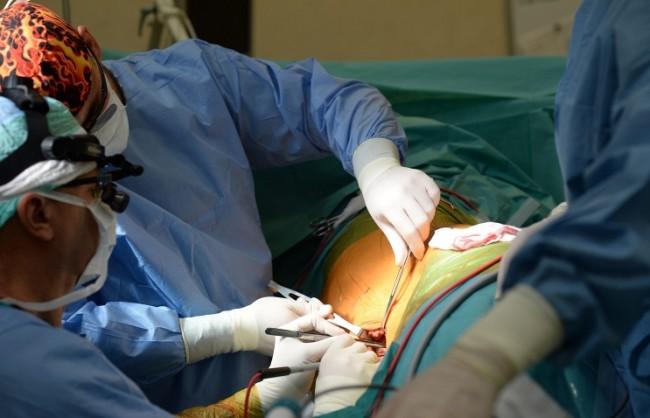 Хирурзи готови да трансплантират глава на човек