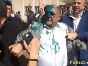 Пребитият от украински националисти Василий Кащи, зам.-председател на Асоциацията на българите в Украйна