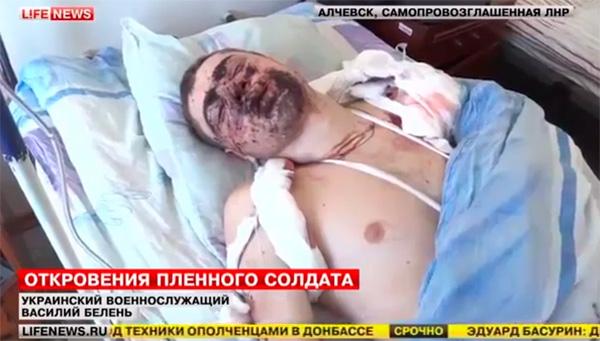 Посланието на един ранен украински войник към Порошенко (ВИДЕО)