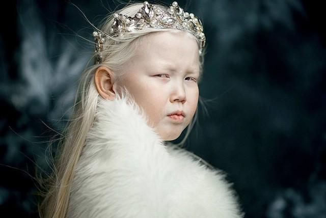 Истинската Снежанка е от Сибир и е на 8 години